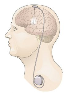 Illustration of a human head showing the brain and a deep brain stimulator, including the implant into the brain and the unit in the neck.
